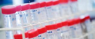 Svar-Life-Science-test-tube-with-clear-liquid-and-red-caps-standing-in-tuberack